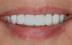 After dental bridge placement at Dental Excellence