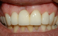 After cosmetic dentistry services