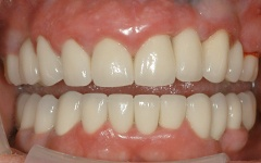 After Full mouth reconstruction at Dental Excellence