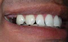 Before treatment at Dental Excellence