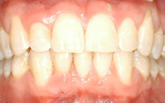 After Orthodontic treatment at Dental Excellence