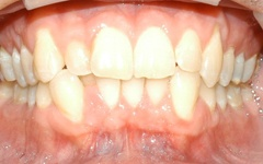 Before orthodontic Treatment by Dr. Noorda