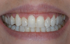 After six month smiles treatment