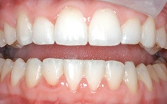 After completion of six month smiles treatment