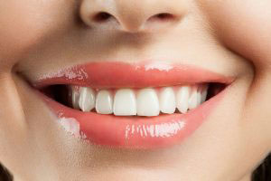 Can teeth whitening in Henderson, NV help me this season?