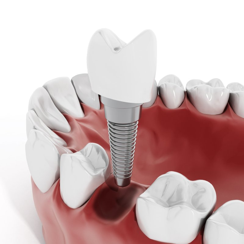 Dental implant being inserted into the lower jaw